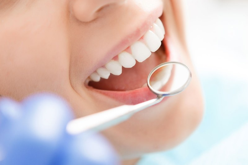 lo-sbiacanamento-dentale-danneggai-i-denti_800x533